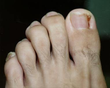 Ingrown Toenails Auckland Podiatry Clinic Footcare